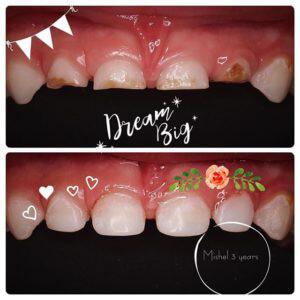 приклад лікування зубів у дітей