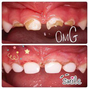 дитяча стоматологія в україні