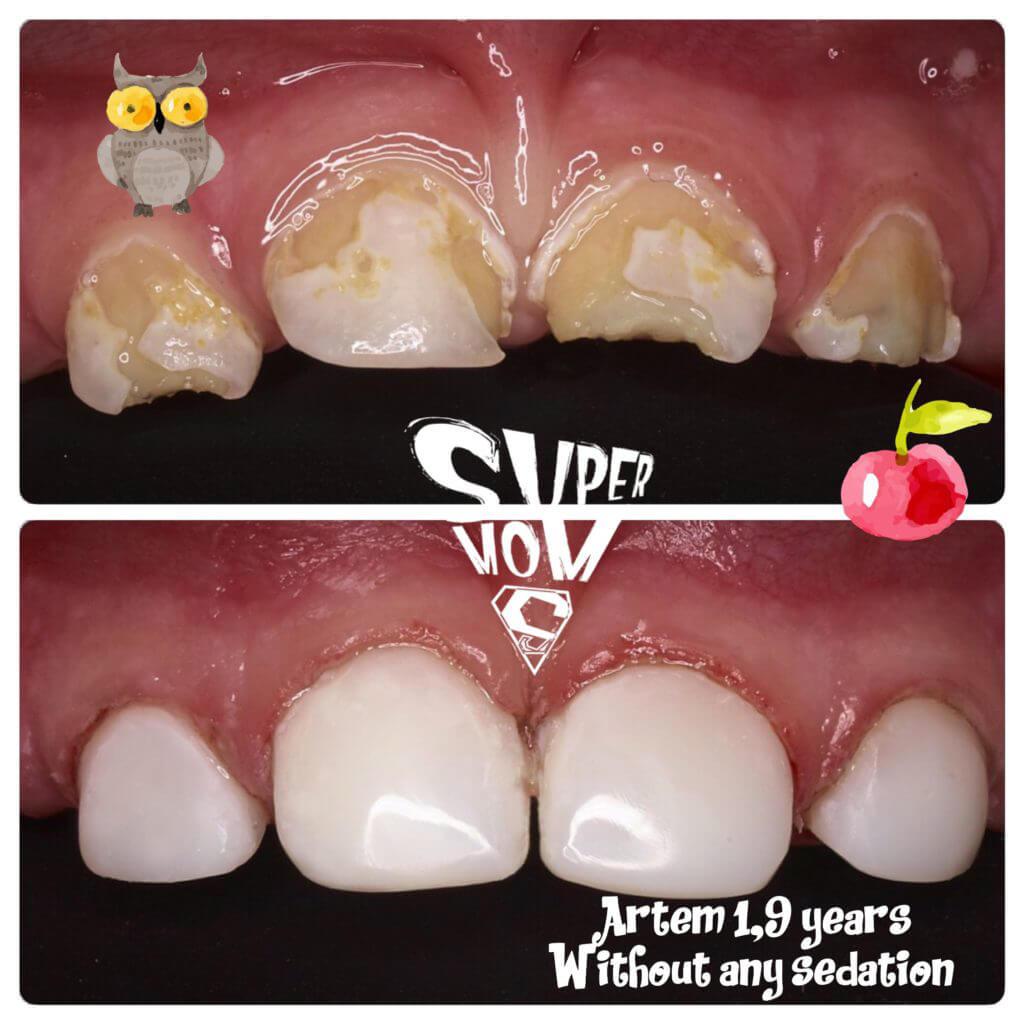 стоматологічна клініка MamaDentist фото робіт