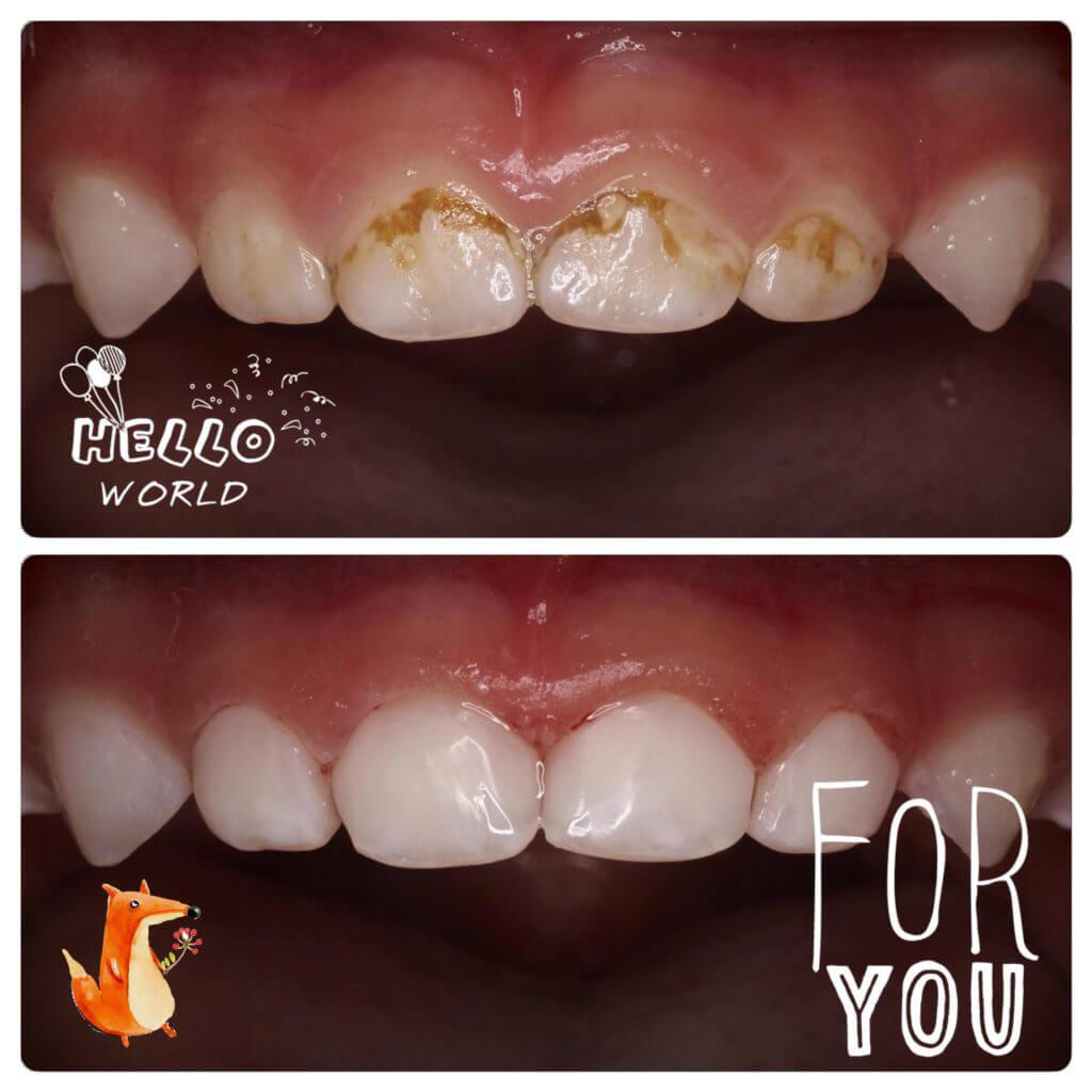 лікування захворювань зубів у дітей