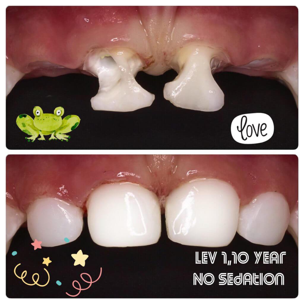 приклад лікування молочних зубів у дітей
