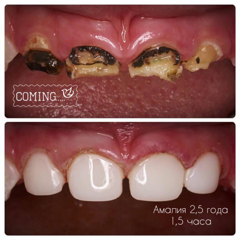 Реставрация передних зубов коронками
