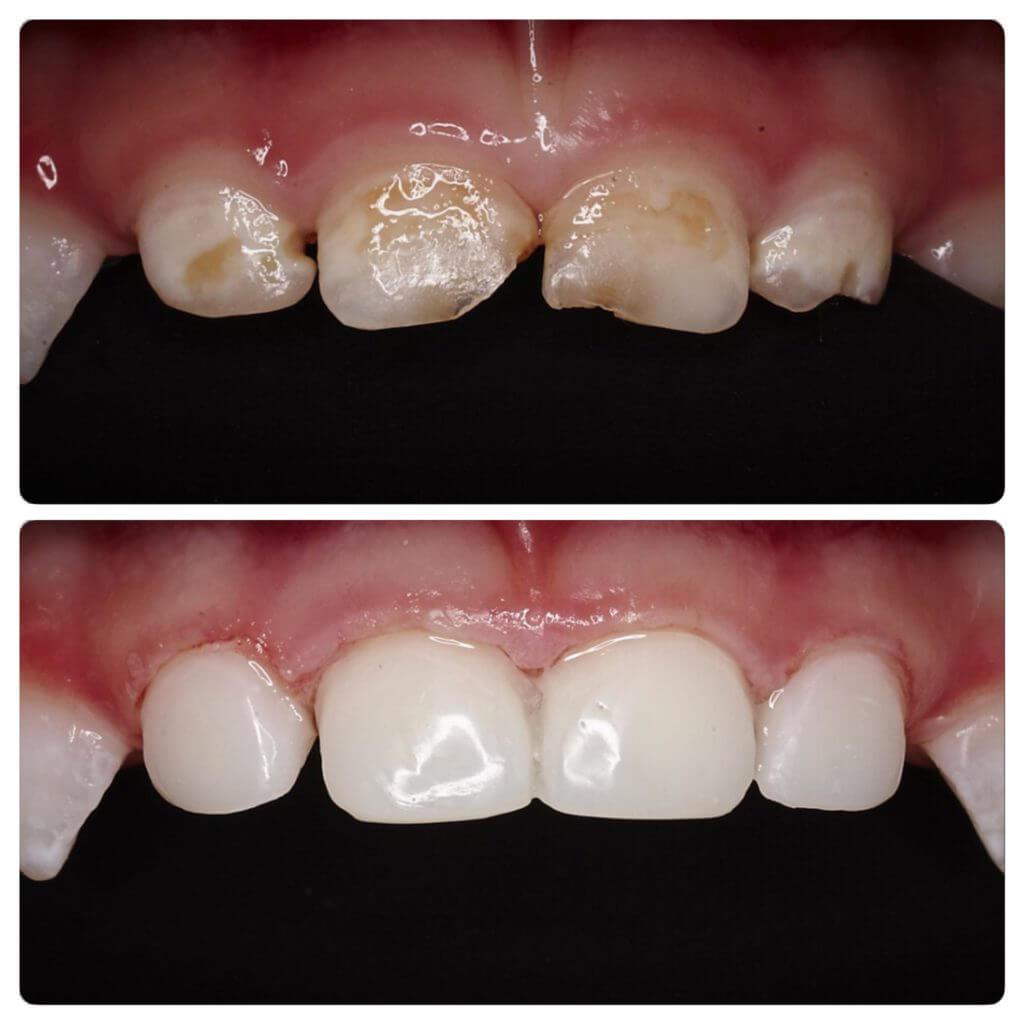 MamaDentist клініка дитячої стоматології - наші роботи