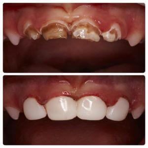 кариес молочных зубов наши работы