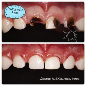 детская стоматология примеры работ