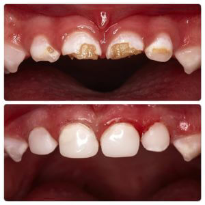 caries of milk teeth treatment