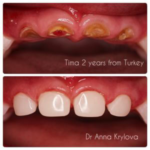 caries treatment
