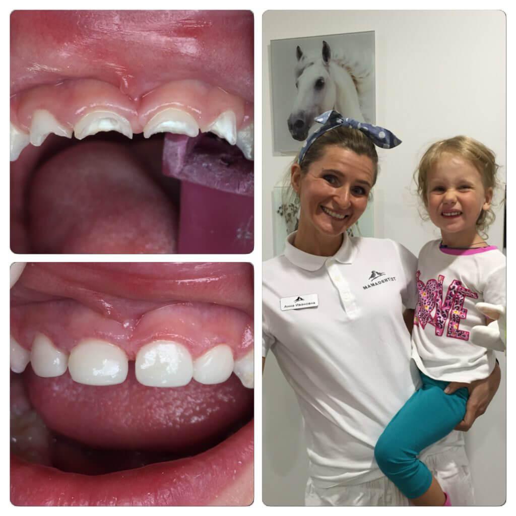 Реставрация детских зубов