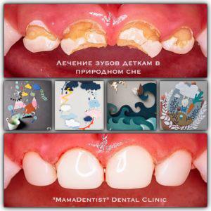 лечение молочных зубов наши работы