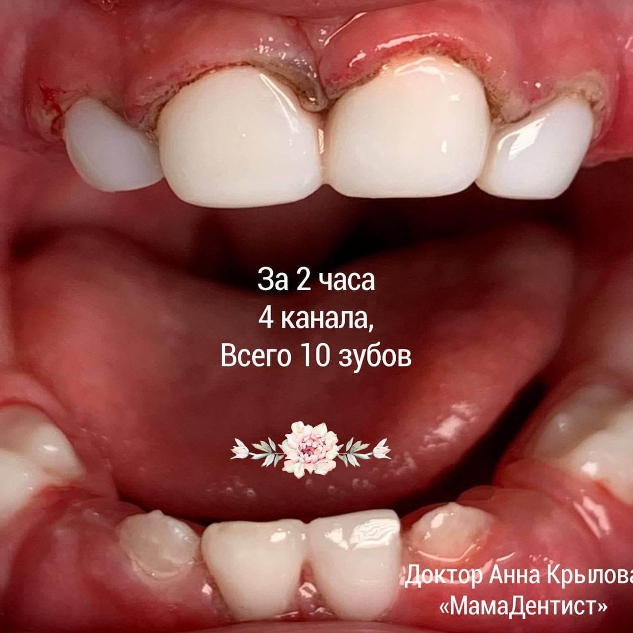 Лечение 10 зубиков
