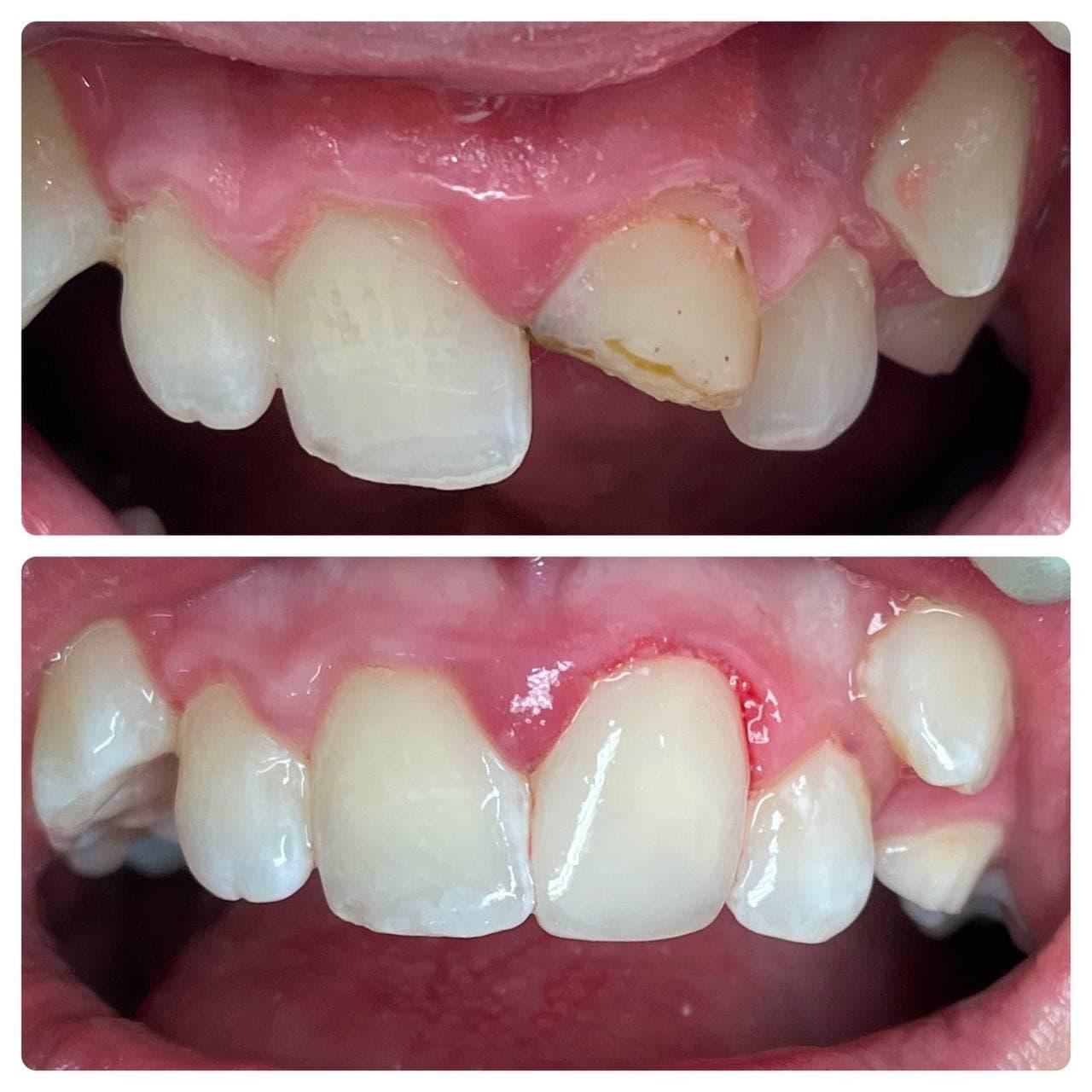 Реставрация зубов у детей